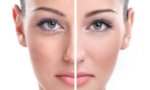 Как избавиться от расширенных пор на лице