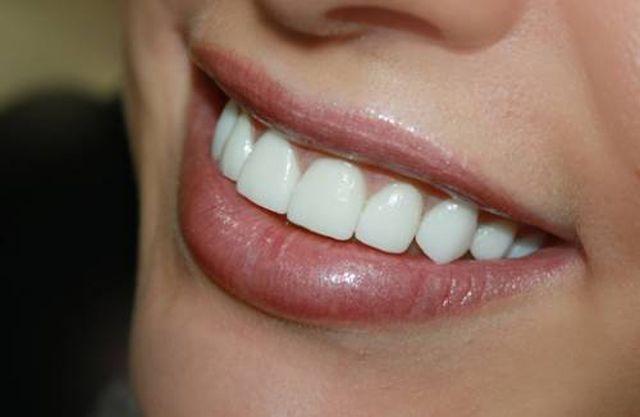 как обтачивают зубы под виниры фото